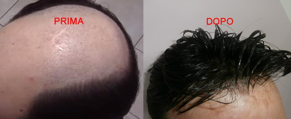 epitesi capelli